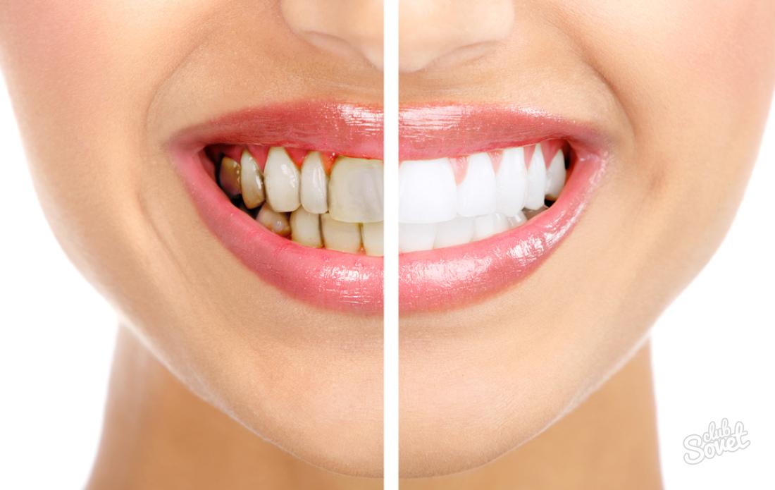 Как избавится от налета на зубах в домашних условиях