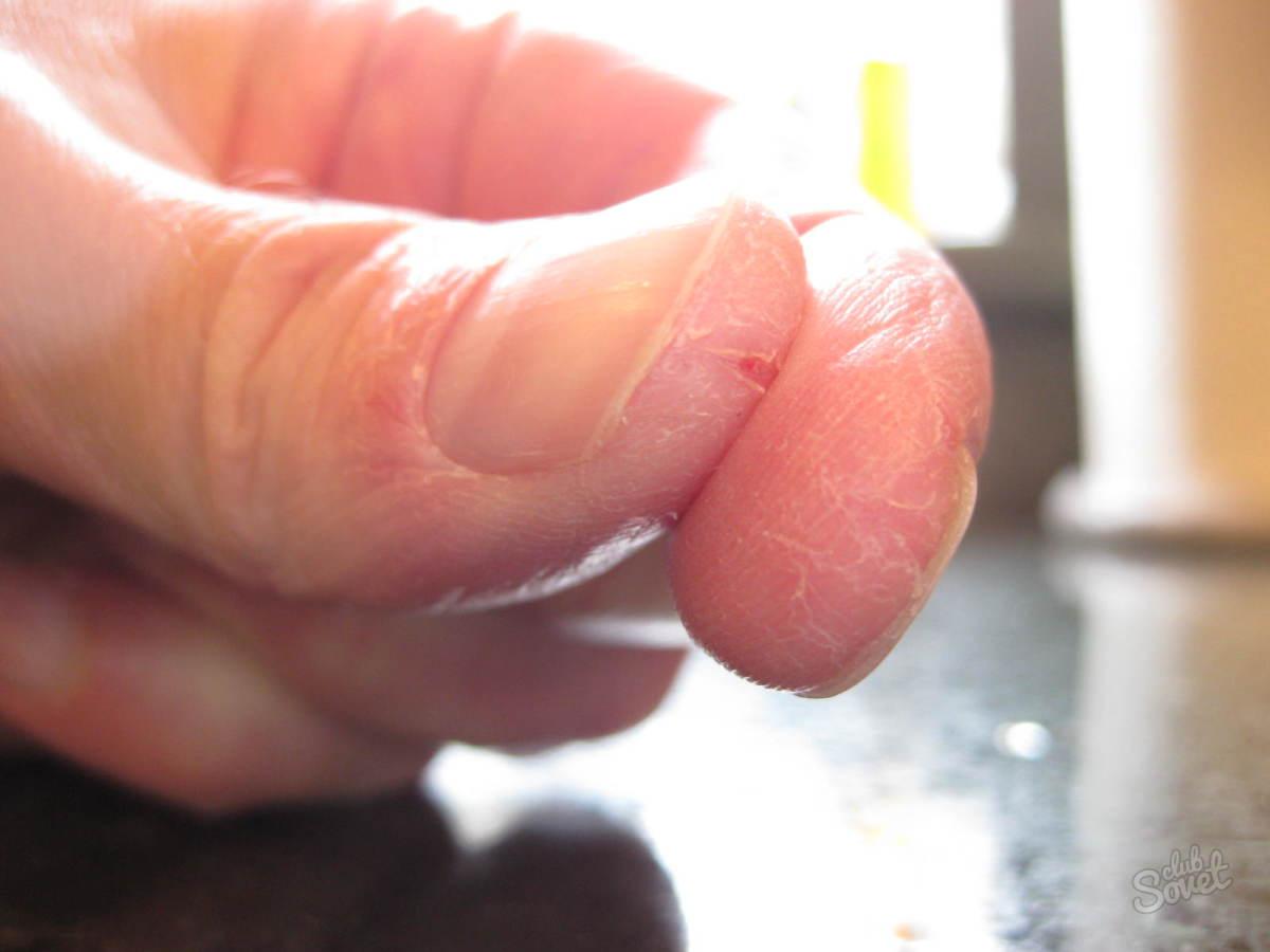 Шелушение кожи члена 24 фотография