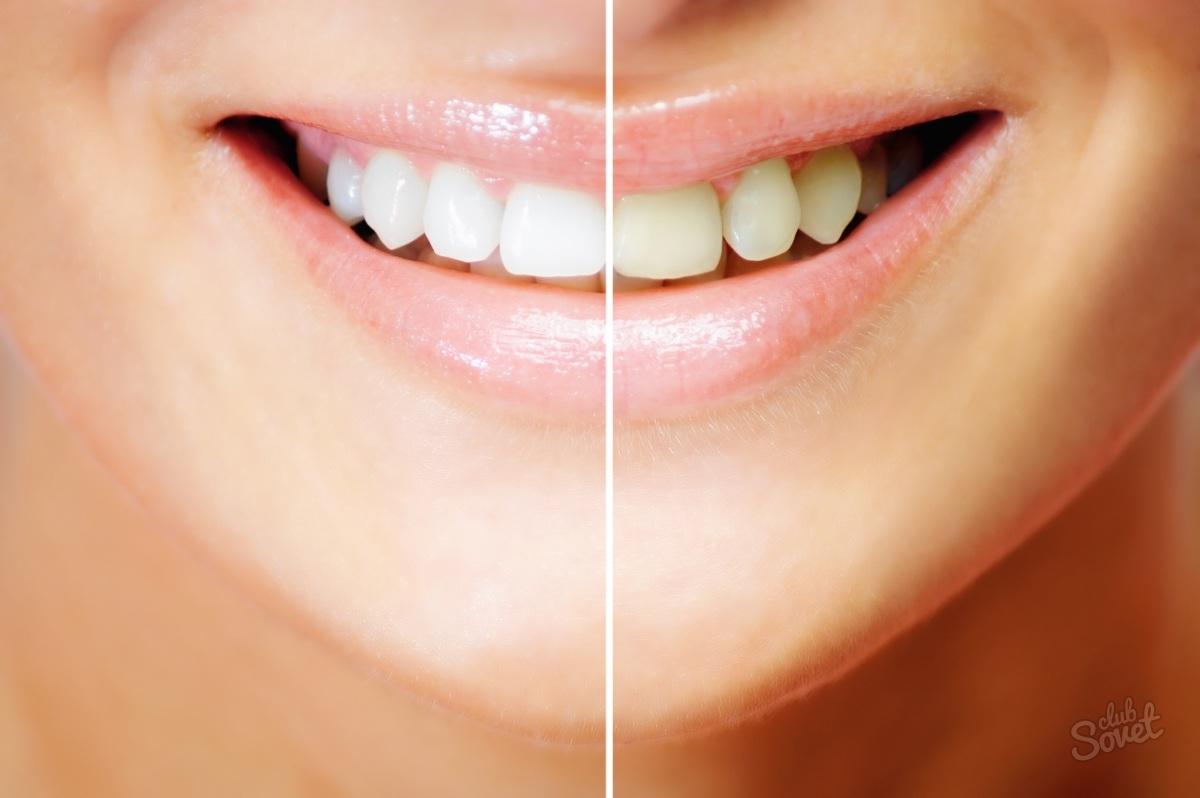 Почистить зубки не даёт 15 фотография