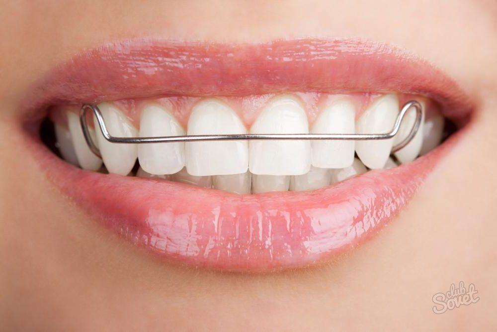 Как сделать пластинку для зубов своими руками