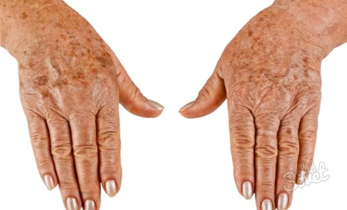 Как убрать возрастные пятна на руках в домашних условиях