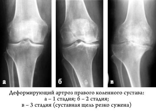 деформирующий артроз артрит коленного сустава лечение
