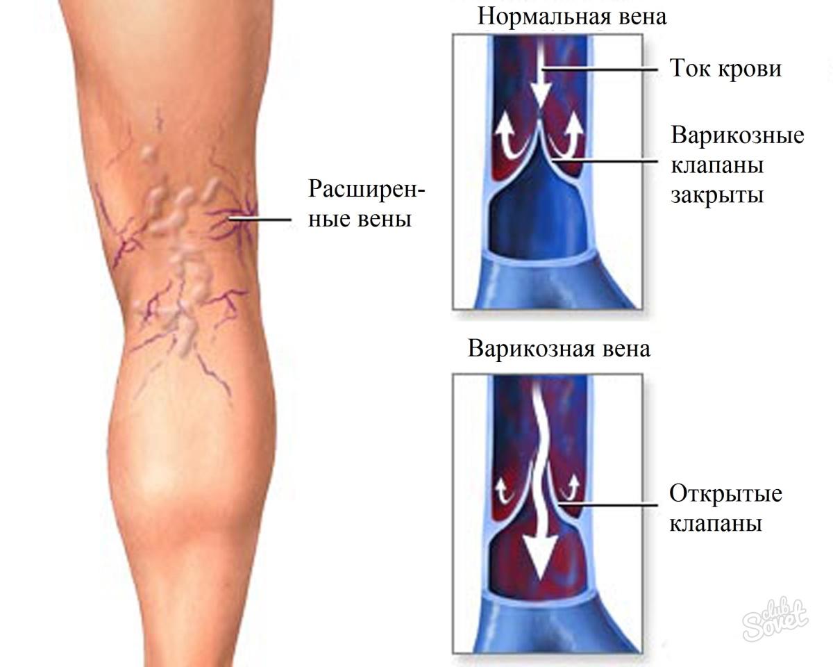 Вены на ногах как лечить в домашних условиях