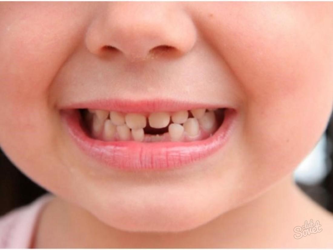 Шатается зуб - что делать, в чем причины, как лечить? Гид по 54
