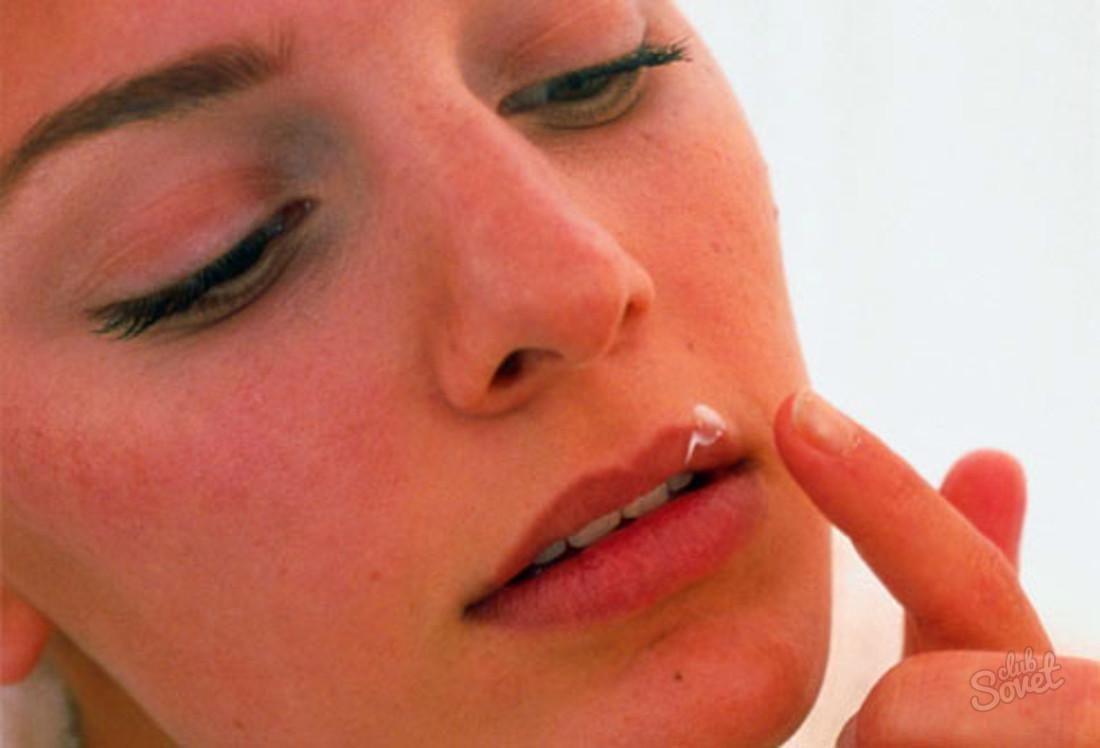 Как быстро вылечить герпес на губах | Азбука здоровья