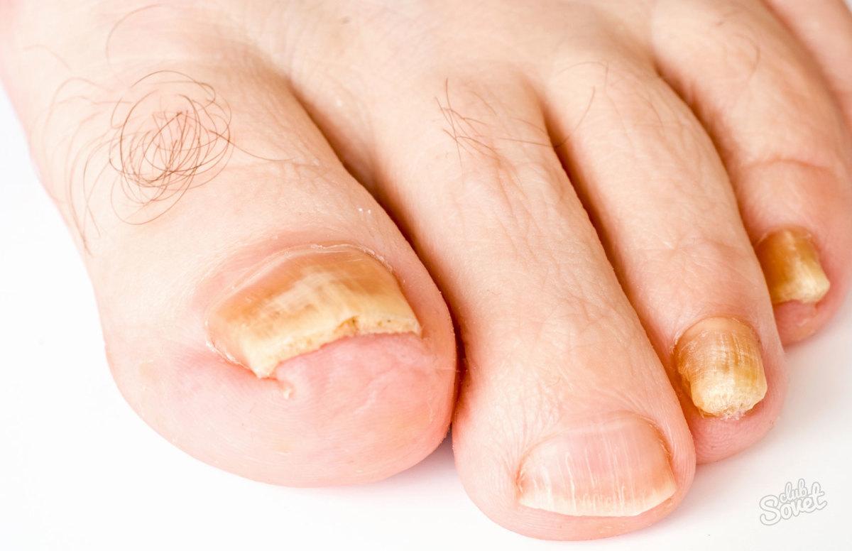 Онихолитический тип грибка ногтей