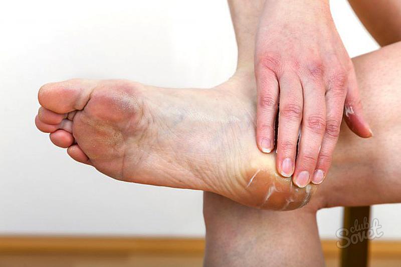Трещины на пальцах ног лечение в домашних условиях