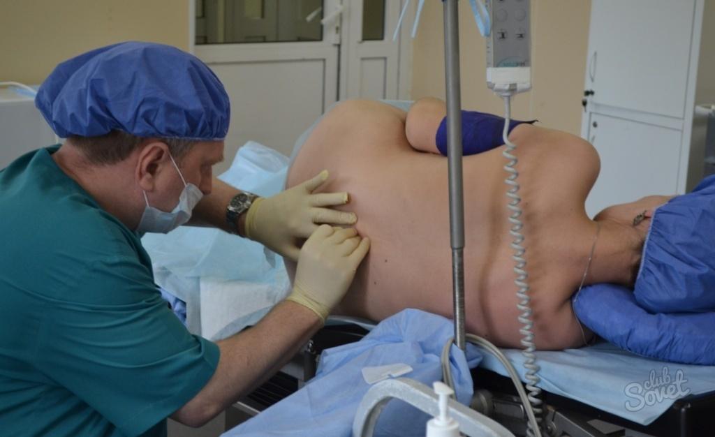 Видео роды при эпидуральной анестезии