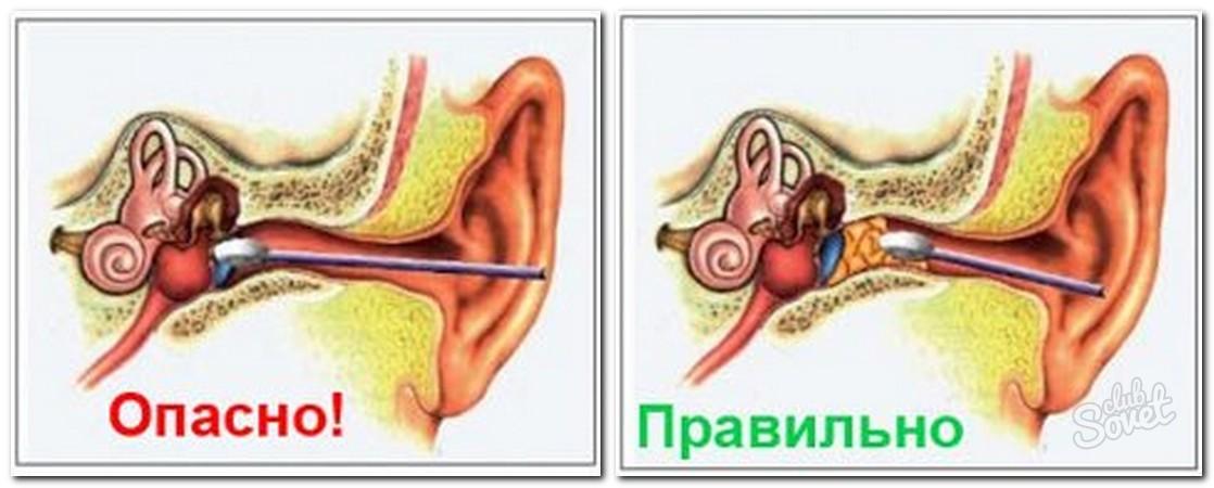 Как промыть пробки в ушах в домашних условиях ребенку