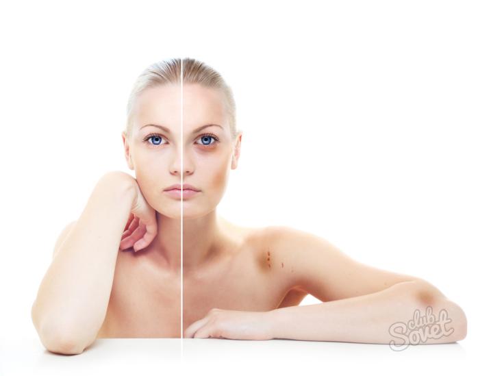 Как избавиться от синяка на лице в домашних условиях быстро за 1 день