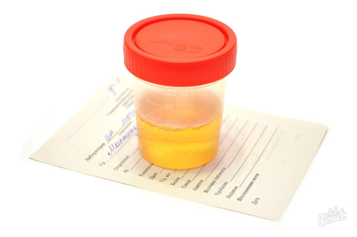 Соли оксалаты у беременных
