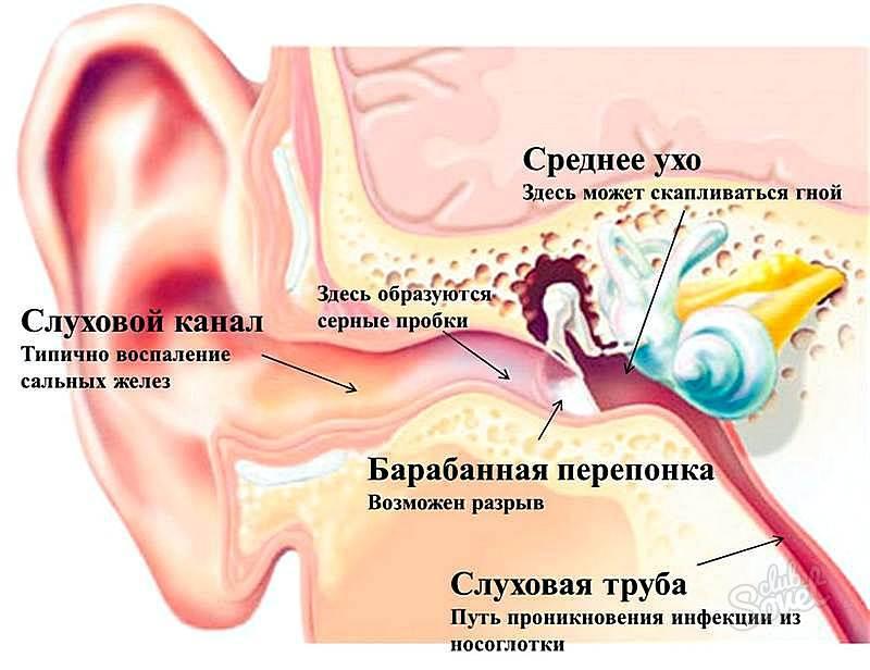 Как вылечить простуженные уши в домашних условиях