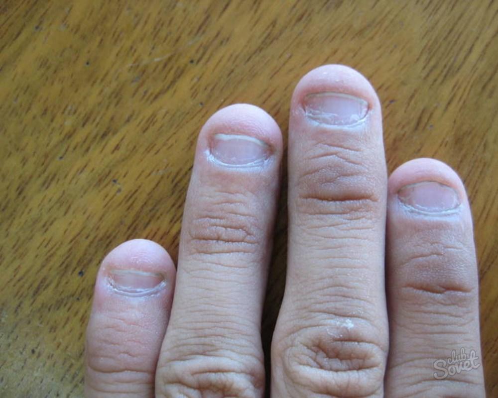 Маленькие ногти на руках