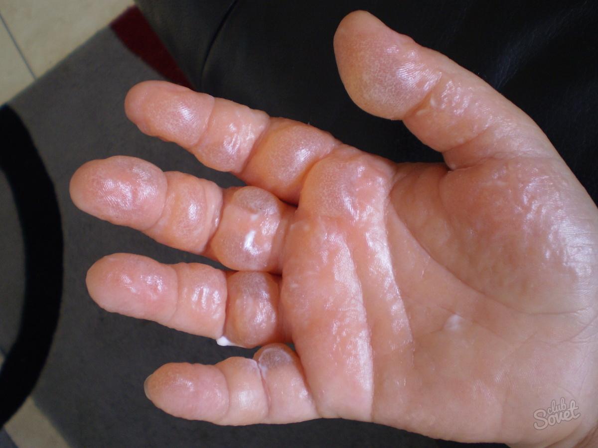 Как в домашних условиях лечить ожоги от борщевика