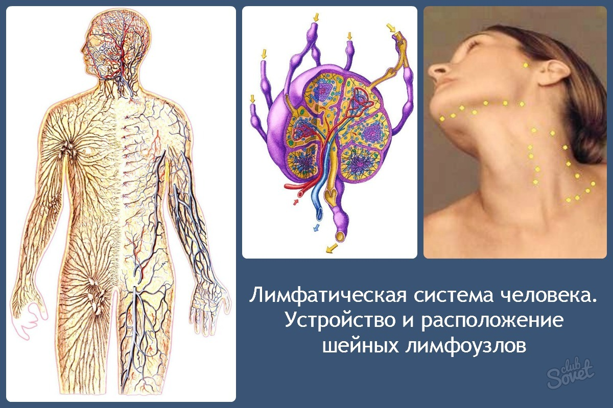 Как лечить ангину с воспаленными лимфоузлами