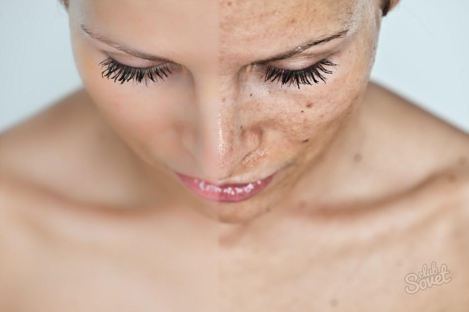 Как избавиться от пигментный пятен на лице в домашних условиях