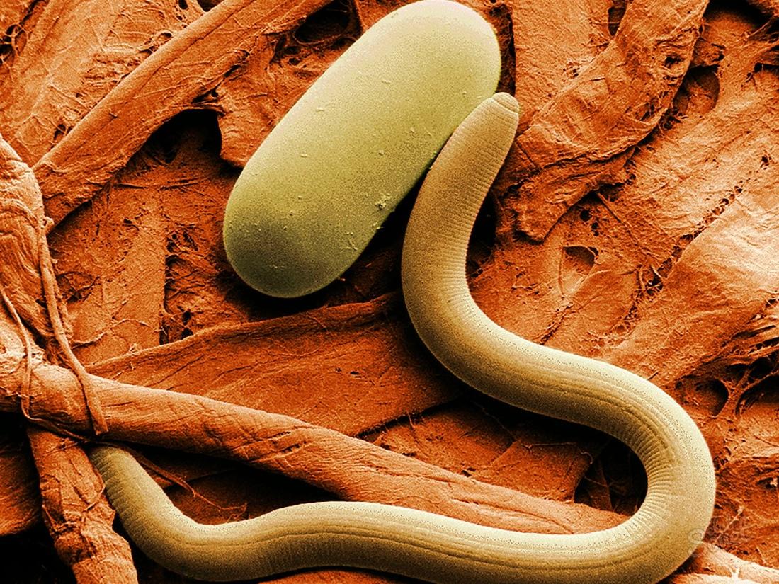 паразиты в человеке признаки