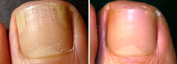 Как реально вылечить грибок застарелый ногтей