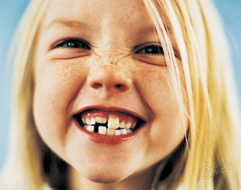 Приснилась кривые зубы