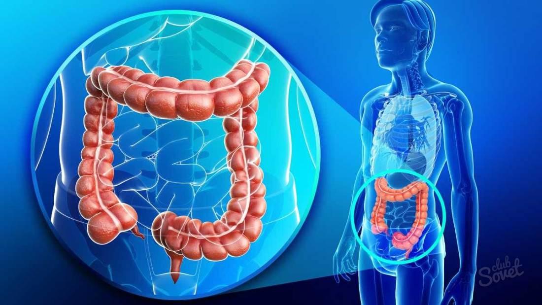 Язвенный колит кишечника - симптомы и лечение. Методы лечения язвенного колита кишечника