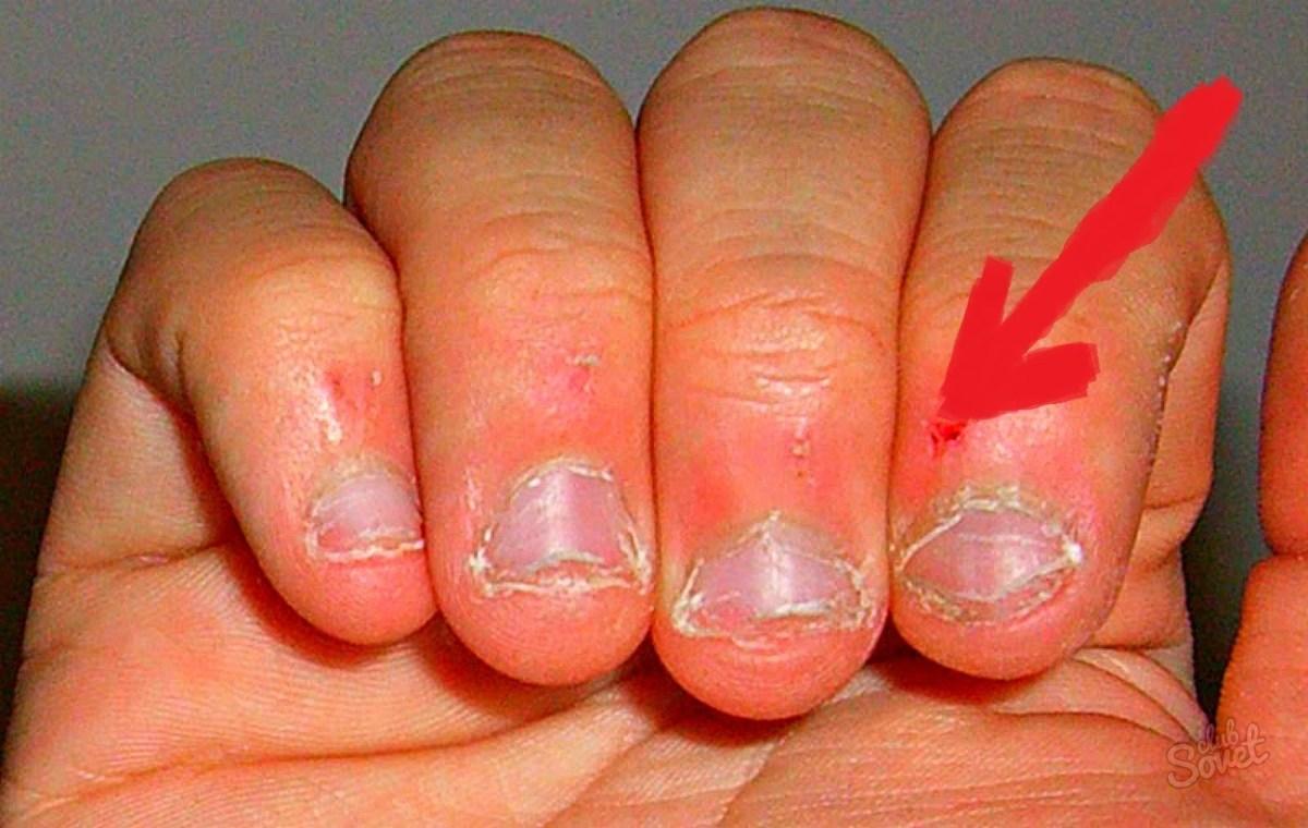 Фото когда грызешь ногти