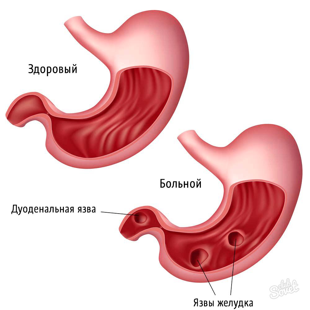 Кальмагин, висмута трикалия дицитрат - справочник