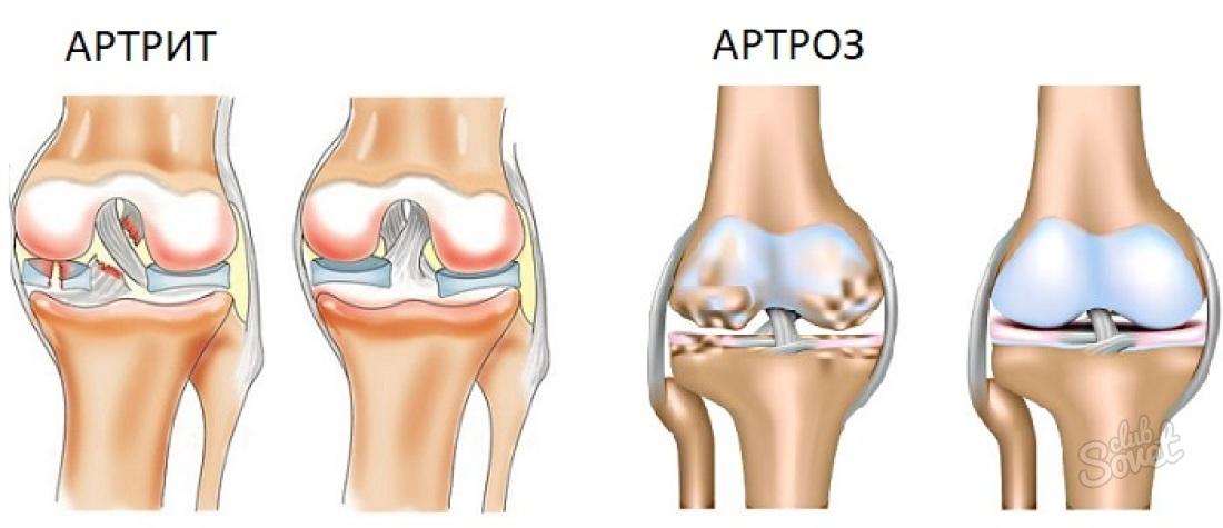 картинки артроз артрит ферритовыми