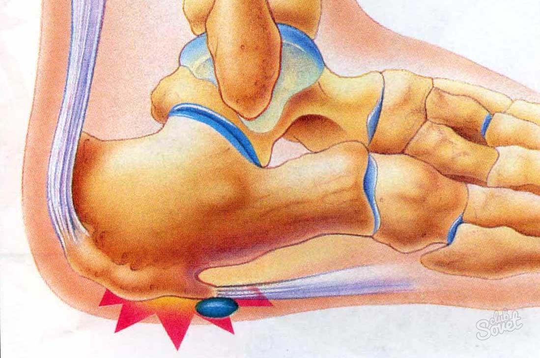 Лечение боли в пятке народными средствами